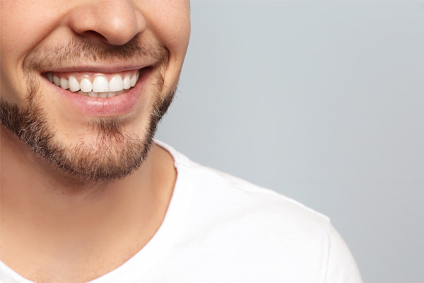Teeth Whitening and why you should only see a Dentist