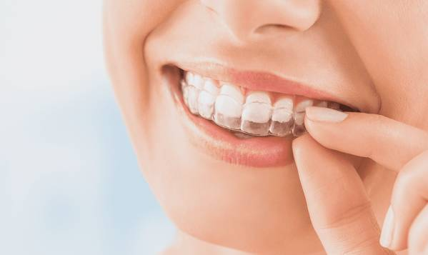 Did you know that Invisalign could be better than a facelift?