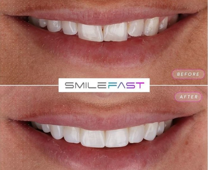 Exciting NEW treatment coming to our practices – Introducing SmileFast