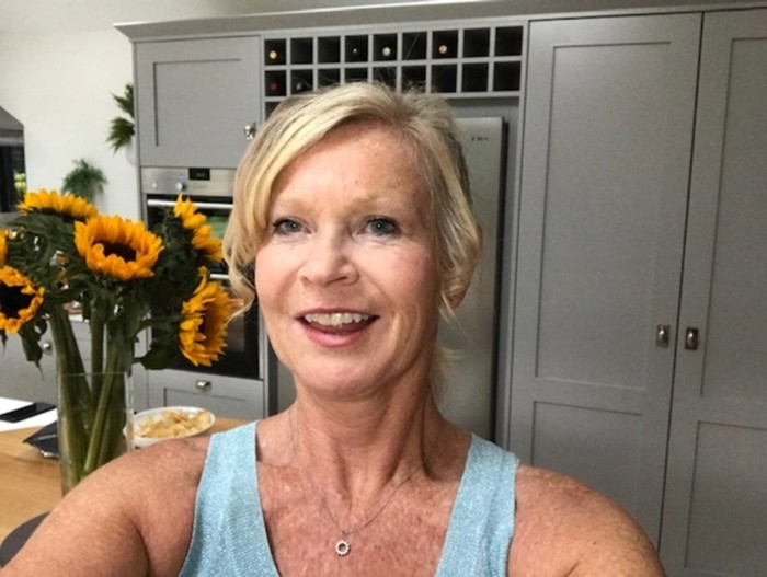 Together Dental's Marketing Director Liz shares her Invisalign journey